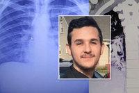 Tonda (19) kouřil dva roky e-cigaretu, plícemi starého kuřáka šokoval i lékaře
