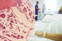 Lékaři ví, kdo na 100 % dostane rakovinu: Nemocným musí včas odstranit konečník i střevo! Komu zákrok hrozí?
