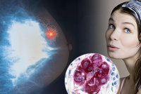 Barvy na vlasy zvyšují riziko rakoviny prsu, varuje nová studie! Ostražitost je na místě, řekla česká onkoložka
