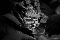Horor na sále: Hlava se miminku utrhla při porodu, sestře pak vypadla z rukou na zem