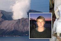 Šokující fotky znetvořeného mladíka (19): Výbuch sopky v dovolenkovém ráji mu spálil většinu těla!