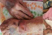Babičku Martu (85) pustili z nemocnice s otevřenými ranami: Lékař místo omluvy šokoval