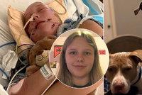 Pitbulové potrhali dívku tak brutálně, že ji skalpovali a skončila v kómatu