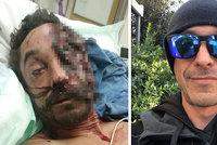 Daniel při nehodě přišel o půlku tváře: Teď pomáhá ostatním závislým