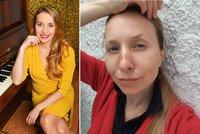 Tereza Bebarová skončila s podlitinami na obličeji! Neuvěříte, co se jí stalo