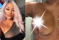Kosmetička si po dvou dětech nechala spravit prsa v Turecku: Upadla jí bradavka!