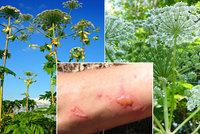 Agresivní rostlina ničí českou přírodu: Může popálit kůži, odborníci ji sledují drony