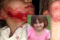 Holčička (6) skončila s těžkými popáleninami na obličeji: Způsobila jí je dezinfekce!