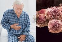 Zákeřná rakovina slinivky: Pacienti nešli kvůli pandemii k lékaři, nádor pak nešel operovat