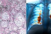 Zákeřná nemoc napadá plíce, klouby, játra, oči i srdce: Sarkoidóza ohrožuje víc ženy