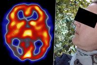 Gábině (41) ničila migréna život: Injekce do hlavy, psychické problémy i stres