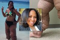 Vzácná choroba znetvořila ženě nohy: Nepomohlo ani 10 operací