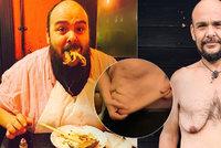 Johnny se 25 let přejídal, teď zhubl 100 kilo: Prosí lidi, ať mu pomůžou zbavit se nadbytečné kůže