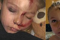 Chlapečka (6) srazil mladík na elektrické koloběžce: Od té doby trpí výpadky paměti a bojí se chodit ven
