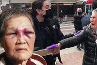 Šílenec zničehonic napadl babičku: Důchodkyně ho zbila holí. Na její podporu se vybralo jmění