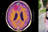 Natálka (12) upadala do bezvědomí: Děti s epilepsií trpí během pandemie osaměním