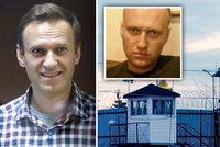 Navalnyj je v kritickém stavu, varují lékaři. Kritikovi Putina hrozí selhání ledvin