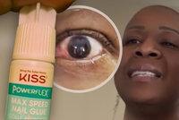 Místo kapiček si do oka nakapala lepidlo na nehty: Před ztrátou zraku ji zachránil neuvěřitelný detail