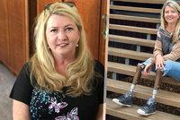 Zákeřná nemoc ji připravila o nohy: Chtěla jsem umřít, přiznala poslankyně Brzobohatá