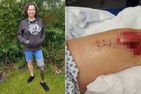 Při překračování obrubníku jí prasklo koleno: Po mnoha operacích jí museli nohu amputovat!