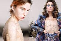 Popáleniny, šikana, sirotčinec: Světlana si prožila hororové dětství, teď je nadějnou modelkou
