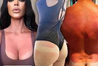 Rudý zadek, hořící dekolty: Kardashianku i další hvězdy potrápilo zrádné sluníčko