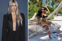 Trapas královny retuší Kim Kardashianové: Kvůli sexy fotce z pláže přišla o prst!