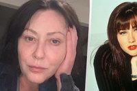 Brenda z Beverly Hills 902 10 otevřeně: Ukázala rakovinou zasaženou tvář!