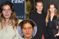 Nehoda krásné dcery hollywoodské hvězdy: Pes ji pokousal v obličeji! Těsně před premiérou