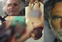 Bezdomovec přišel o většinu obličeje i oči, když mu ho snědl nahatý feťák: Jak napadený žije dnes?