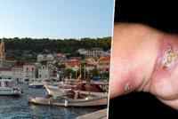 Kožní vředy jako suvenýr zChorvatska: O zákeřné nemoci se příliš nemluví, přitom zabíjí
