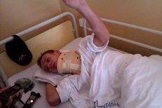 Roman Koudelka promluvil v nemocnici s novináři