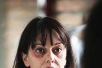 Šokující foto Terezy Brodské (51): Kdo jí  to udělal?