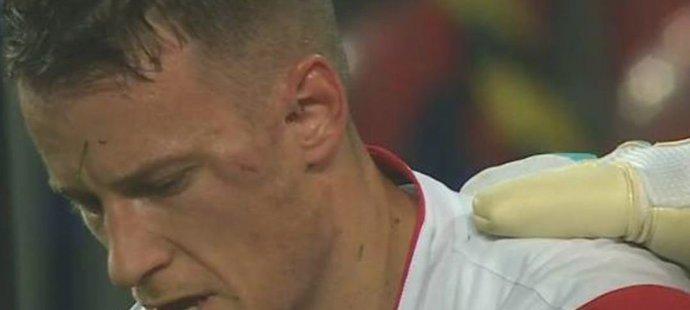 Jan Sýkora si ze souboje s dánským stoperem odnesl ošklivou bouli u levého oka