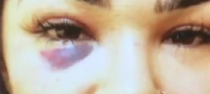 Takhle dopadla Rachael Ostovichová po napadení manželem