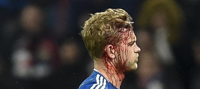 Matthijs de Ligt musel ze hřiště s krvavým zraněním