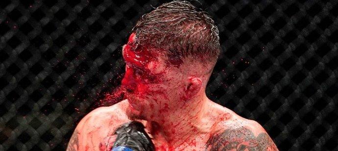 Darren Elkins zbrocený krví v zápase s Natem Landwehrem. Souboj ale nevzdal a prohrál nakonec na body.