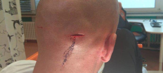 Takhle vypadalo zranění překářkáře Petra Svobody, které si odnesl ze šarvátky se zloději