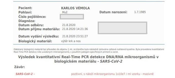 Výsledek testu Karlose Vémoly na koronavir (SARS-CoV-2)