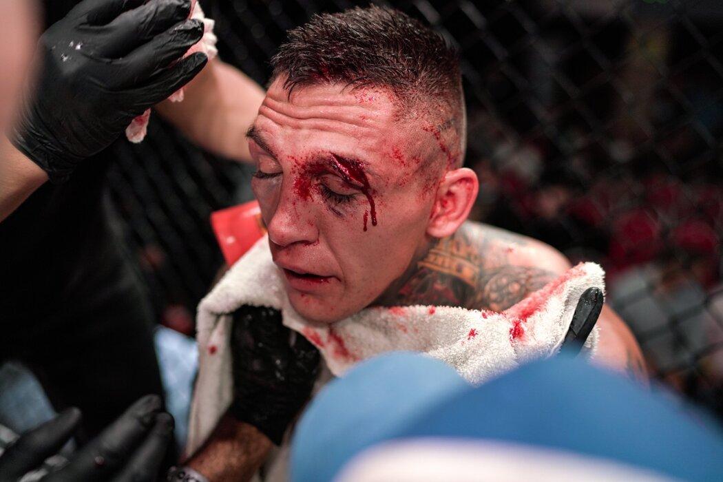 Španěl Tato Primera porazil slovenského bojovníka Gábora Borárose ve 2. kole TKO (zastaveno doktorem)