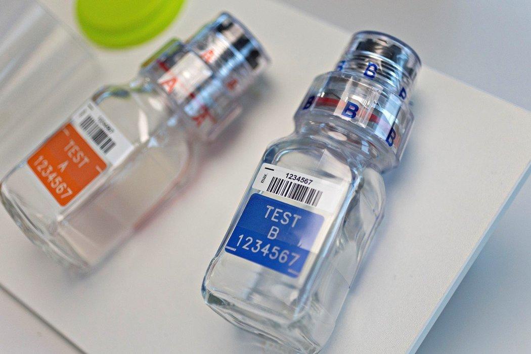 NSA chce řešit doping v českém sportu novým systémem