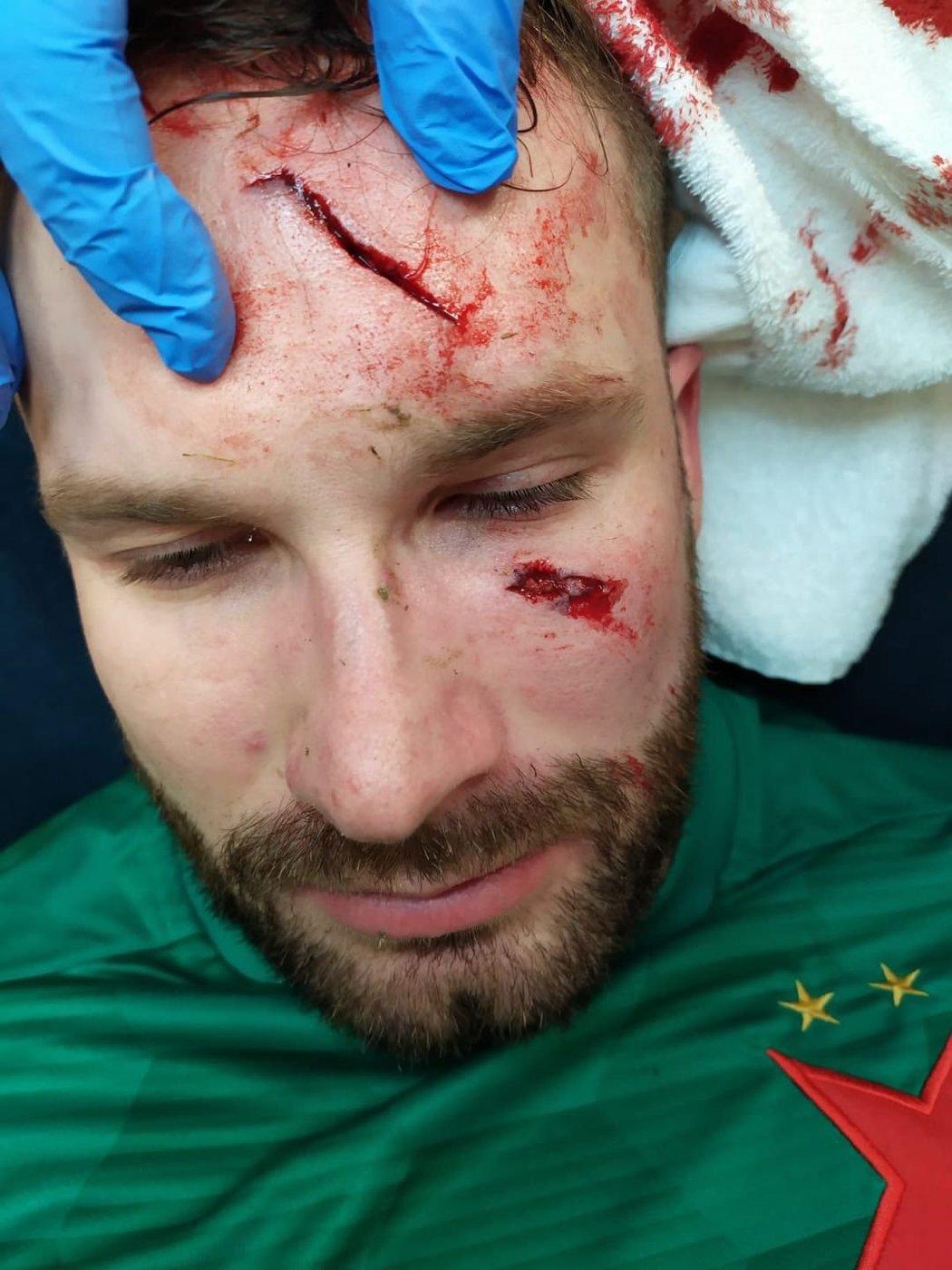 Zakrvácená tvář Ondřeje Koláře, který schytal děsivou kopačku do obličeje