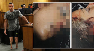 Ukažte světu, jak Pistorius zastřelil Reevu, prosili rodiče. Soudce odhalil posmrtné fotky!