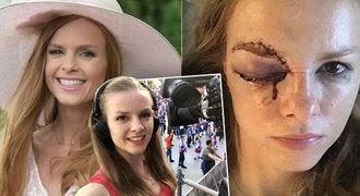 Krásná slovenská hokejová reportérka bojuje o zrak! Co se stalo u střídaček?