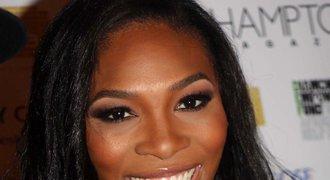 Serena Williams: Má plastiku nosu?