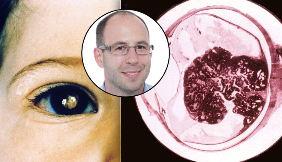 Zákeřný nádor může připravit dítě o oko. Retinoblastom je vzácný, ale zákařný