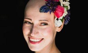 Blance kvůli alopecii vypadaly všechny vlasy, obočí i řasy. Nyní pomáhá jiným ženám, které mají stejný problém.